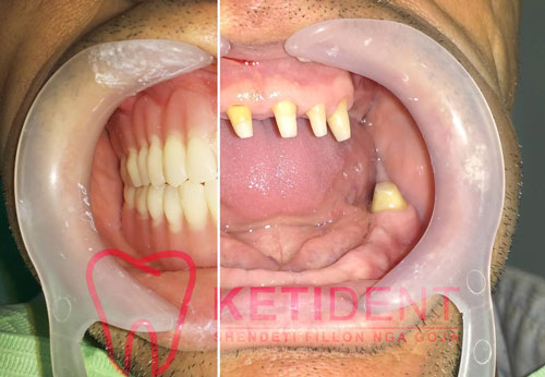 dental treatment 10