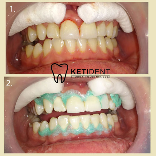 dental treatment 11