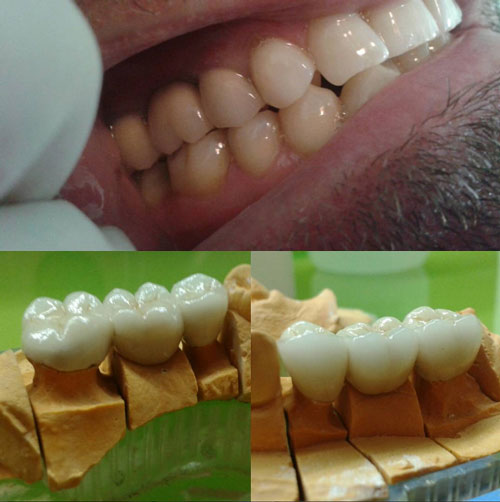 dental treatment 19