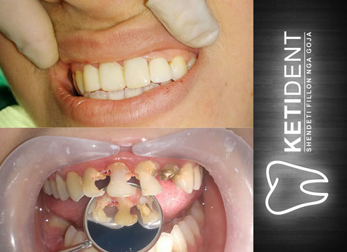 dental treatment 4