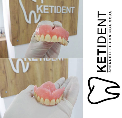 dental treatment 6