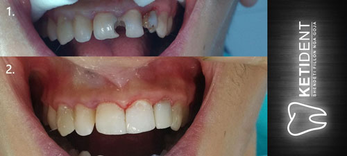 dental treatment 7