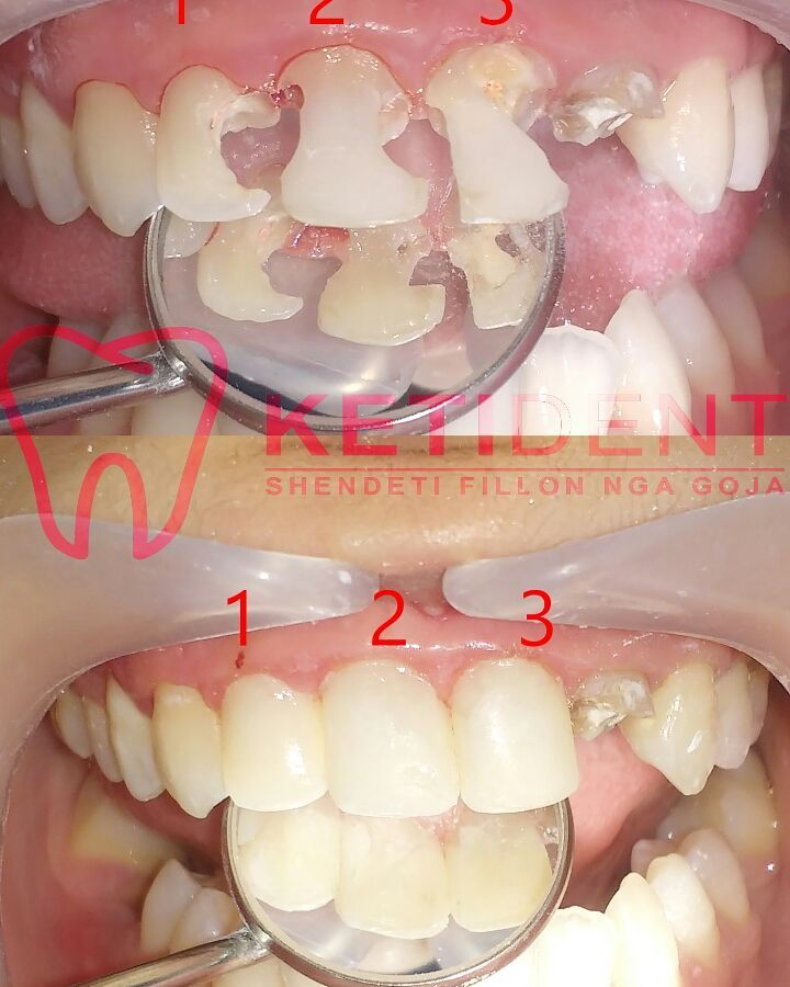 dental treatment 8